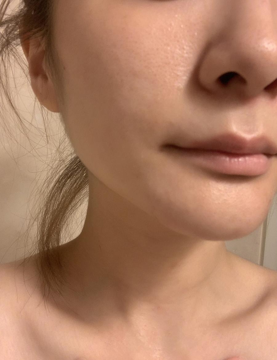 肌の改善について